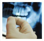 root canal pain, toothache treatment Federal Way