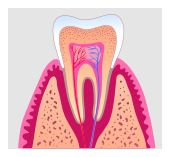 root canal in Federal Way